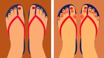 5 Reasons Doctors Are Now Warning People To Never Wear Flip Flops