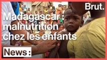 Madagascar : les enfants souffrent de malnutrition