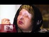 Irán castigará con la horca los ataques con ácido a mujeres/ Entre Mujeres