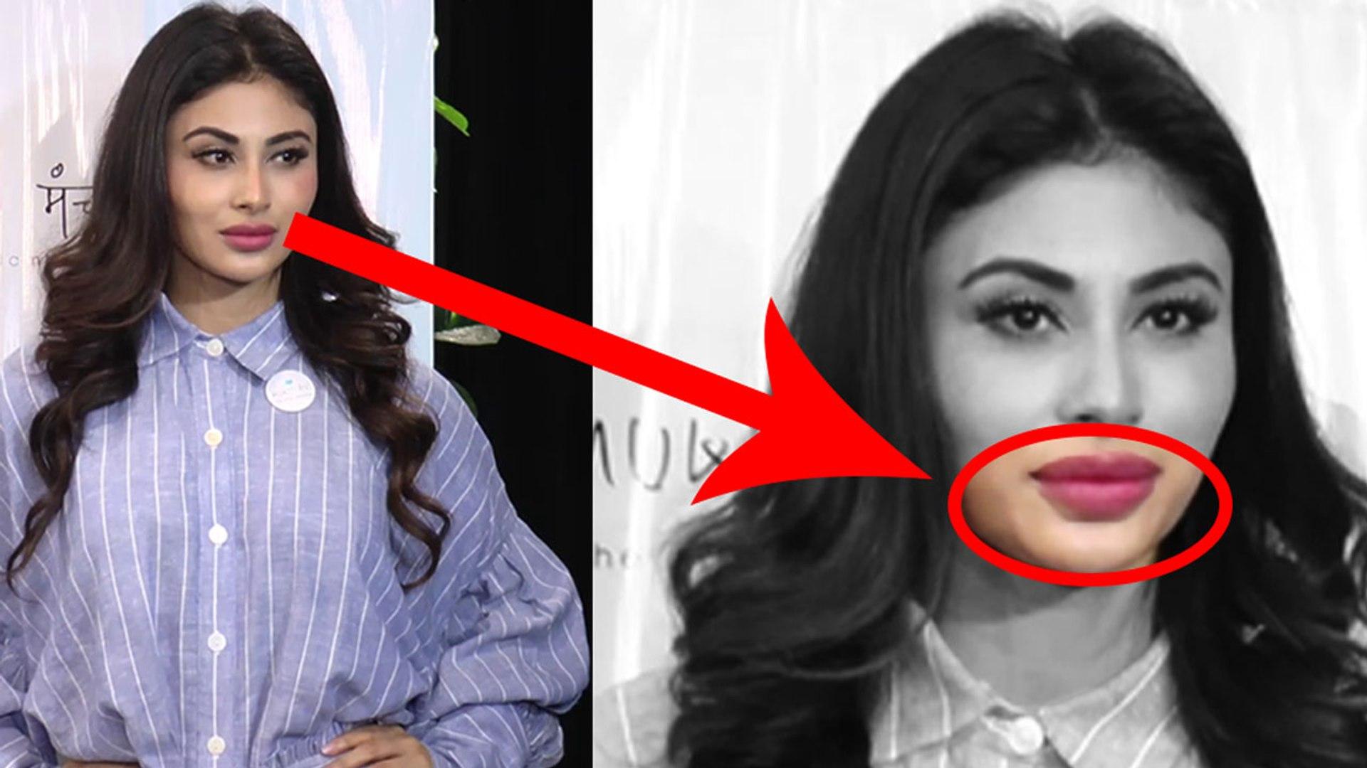Mouni Roy की Lip Surgery बिगड़ी, लोग भी देखकर हुए हैरान