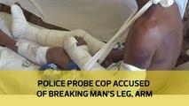 Police probe cop accused of breaking man's leg, arm