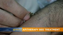 Apitherapy bee treatment for pain [The Morning Call]