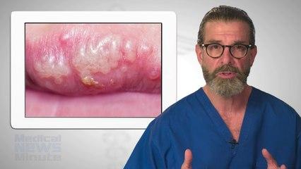 Herpes 1 (Oral Herpes)