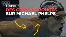 JO de Rio : les marques rouges sur le corps de Phelps ont une explication
