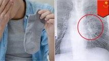 Kebiasaan aneh suka cium kaus kaki pria ini terkena infeksi paru-paru - TomoNews