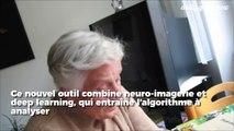 Cette IA est capable de diagnostiquer la maladie d'Alzheimer de très efficacement