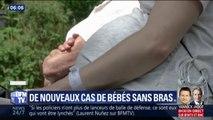 Trois nouveaux cas de bébés sans bras signalés dans les Bouches-du-Rhône
