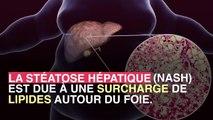Maladie du foie : comment le sucre peut jouer un rôle dans certaines cirrhoses