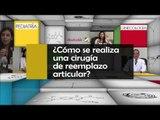 007 COMO SE REALIZA UNA CIRUGIA DE REEMPLAZO DE ARTICULAR
