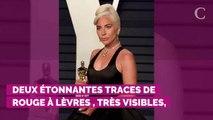 PHOTOS. Lady Gaga et Bradley Cooper se sont-ils embrassés aux Oscars ? Cette trace de rouge à lèvres qui interpelle