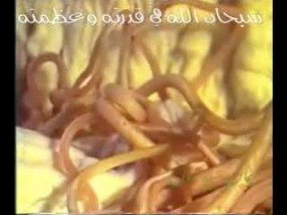 سبحان الله في قدرته وعظمته شاهد عائلة الديدان في بطن الإنسان