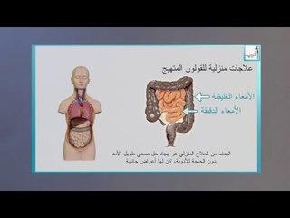 Alyaa Gad - IBS القولون العصبي