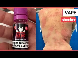 A mum was left with painful burn-like rashes after a serious allergic reaction to VAPING | SWNS TV