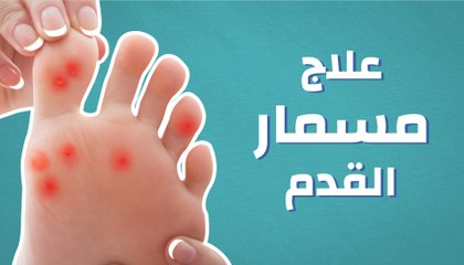 138834232 ما علاج مسمار القدم - موضوع