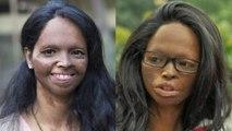 जानिए लक्ष्मी अग्रवाल की सच्ची दर्दनाक कहानी, छपाक में दीपिका पादुकोण निभाएंगी किरदार | वनइंडिया