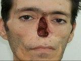 Prótesis de silicona y cera para recuperar rostros y dedos