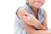 7 astuces maison pour éviter de gratter ses piqûres de moustique