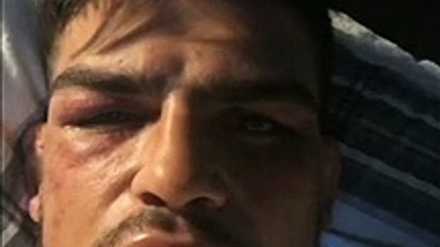 Kelvin Gastelum gives an update on his health and condition after the 5 round war he had with Israel Adesanya at UFC 236.