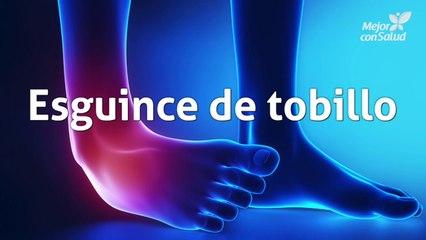 Esguince de tobillo: definición, síntomas y rehabilitación