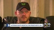 Valley veteran waits months for prosthetic leg