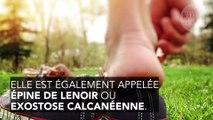 Epine calcanéenne : comment se soigner