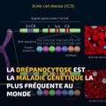 La Minute Santé : la drépanocytose, des traitements existent pour réduire les symptômes