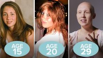 This Woman's Hair Loss in 6 Old Photos