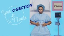 This is Your C-Section in Two Minutes