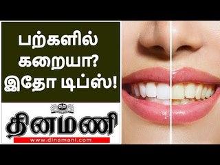 உங்கள் பற்கள் மஞ்சள் நிறத்தில் உள்ளதா? | Removal of Yellow Teeth Stains | teeth whitening in tamil