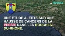 Le risque de cancer de la vessie explose de 50 % à Marseille