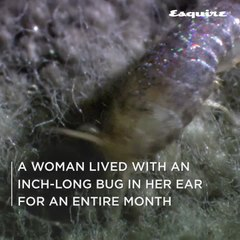 A Woman Lived With An Inch-Long Bug In Her Ear For An Entire Month