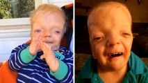 6-Year-Old Boy's Disease So Rare Doctors Named It After Him
