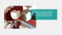 Where Can I Find Dental Implants in the GTA - New Teeth In One Day Dental Clinics