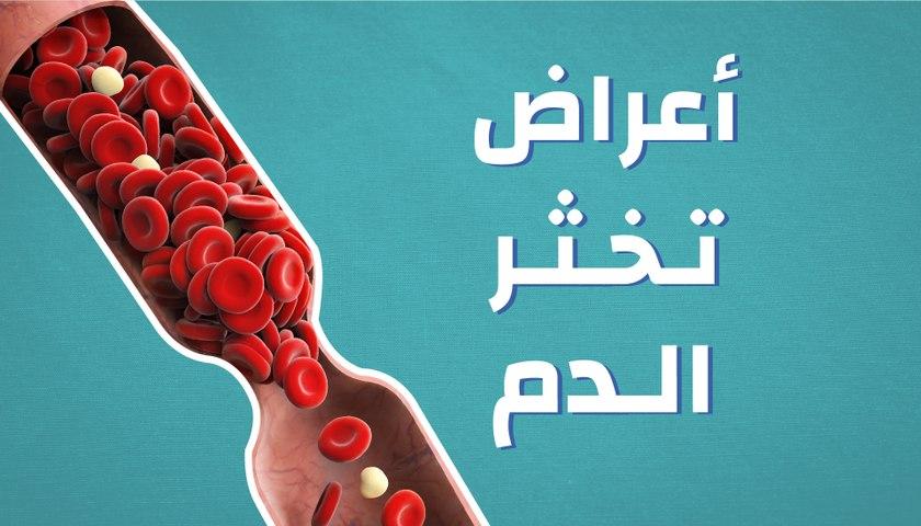 أعراض تخثر الدم