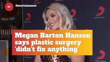 Megan Barton Hanson's Opinions On Plastic Surgery