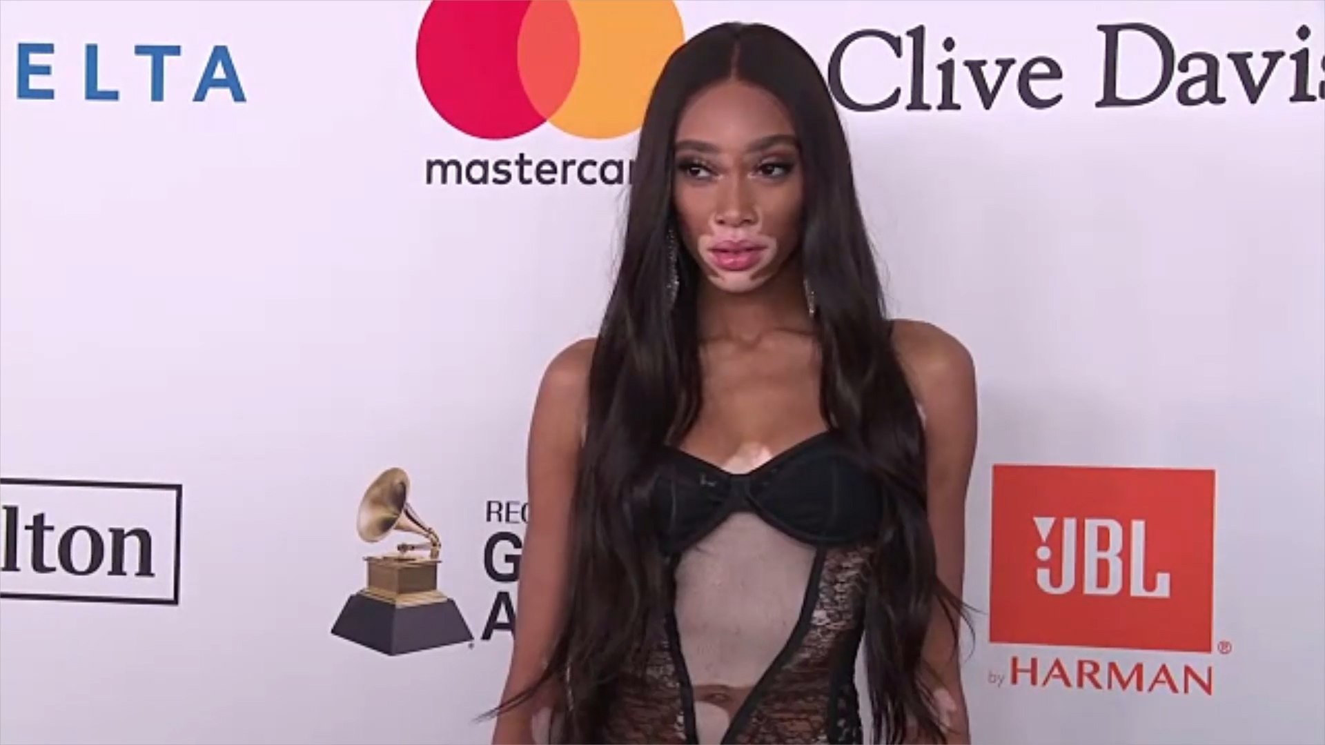This Moment Between Winnie Harlow and a Young Fan Shows