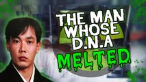 The Man Whose D.N.A MELTED-