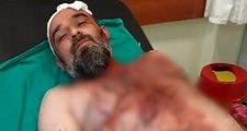 Kahramanmaraş'ta gurbetçi aileye dinlenme tesisinde saldırı: 12 yaralı, 12 gözaltı