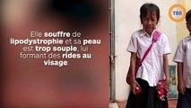 Une écolière de 10 ans ressemble à une femme de 60 ans et subit les moqueries au quotidien !