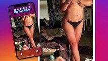 Loana parle avec sincérité des problèmes subis suite à son opération pour maigrir