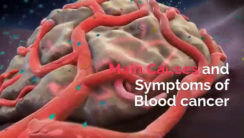 Causes of Blood Cancer And Treatment by Sami Anwar