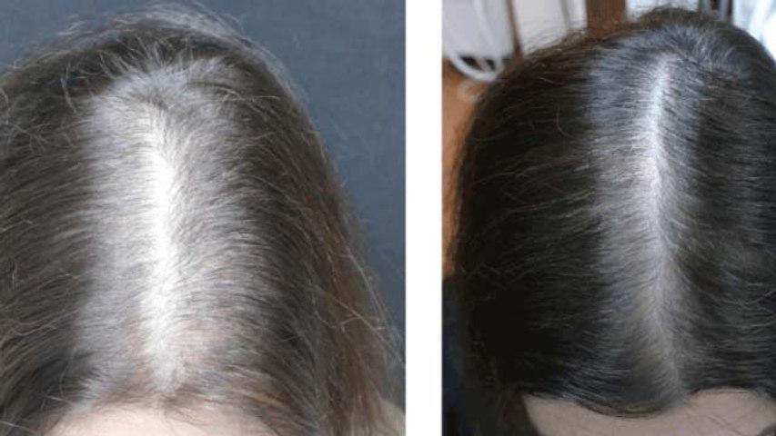 Rose Water For Damaged Hair Growth | गुलाबजल के इस्तेमाल से बालों का झड़ना रोकें | Boldsky
