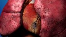 Coronary Heart Disease (Coronary Artery Disease)