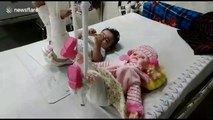 To treat a little girls leg fractures, doctors in Delhi treat her doll too