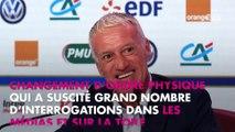 Didier Deschamps : Pourquoi s'est-il fait refaire les dents ?