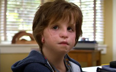 12分钟看《奇迹男孩》,男孩有先天残疾,做了27次手术才保住性命,当你绝望的时候看看他