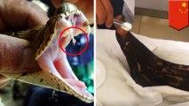 Wanita ini hisap luka dari gigitan ular berbisa, apa yang terjadi? - TomoNews