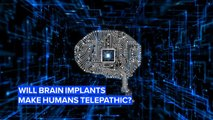 Brain implants are closer than you might think...