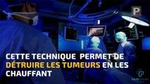 La Minute Santé : la radiofréquence, une nouvelle arme pour détruire les cellules du cancer du pancréas
