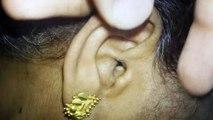 Une araignée vivante retirée de l'oreille d'une femme